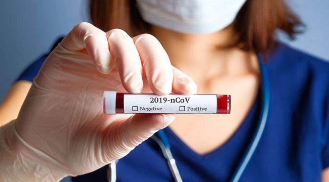 Son Dakika……..Avrupa'da koronavirüsten hayatını kaybeden 4 Afyonlunun Cenazeleri Afyon'a geliyor